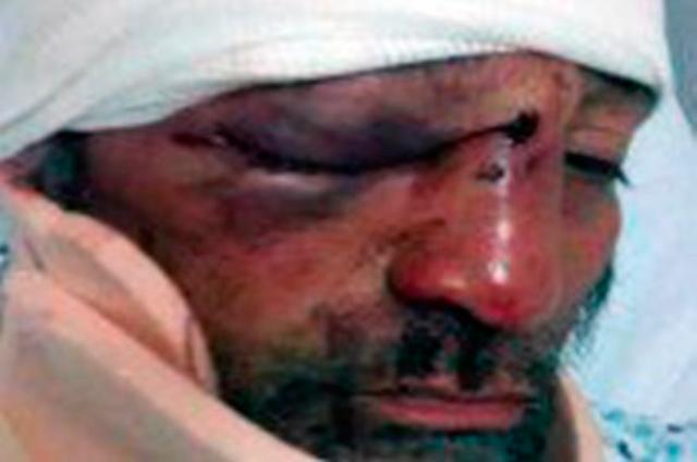 Periodista-golpeado-en-Michoacan-Foto-Especial
