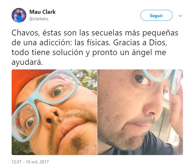 Mauricio Clark, se reconstruye la nariz - Quintana Roo Hoy